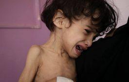 تقرير الأمم المتحدةعن ثلث محافظات اليمن على شفير المجاعة