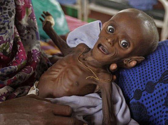 الجوع يهدد بموت في  بجنوب الصومال ويقتل 26 شخصا