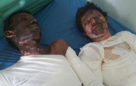 جريمه من جرائم الحوثي وفاة 30 شخصا حرقا بالحديدة