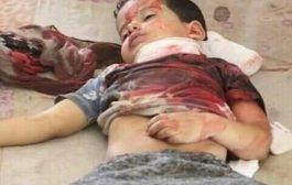 ألغام الحوثي قتلت وأصابت 728 طفلاً