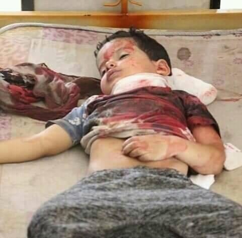 تعز:  سقوط قتلى وجرحى مدنيين إثر اشتباكات مسلحة بين فصائل الجيش
