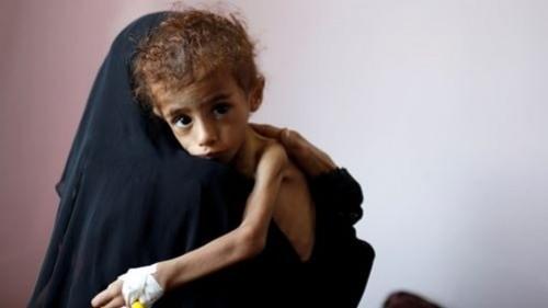 مليشيا الحوثي تجوع اليمنيين والغذاء العالمي يطالب بممرات آمنة في اليمن