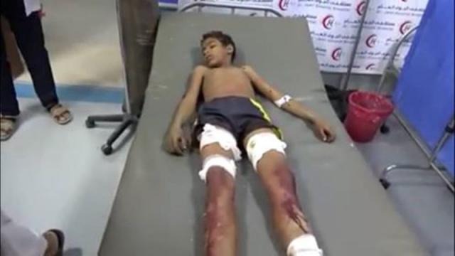 قصف حوثي يودي بحياة أسرة كاملة في الضالع
