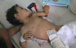 إصابة 5 أطفال بقذيفة حوثية شرق مدينة تعز