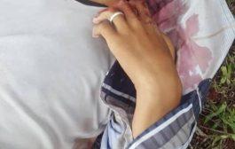 قناص حوثي ينهي حياة طفل كان يرعى في لحج