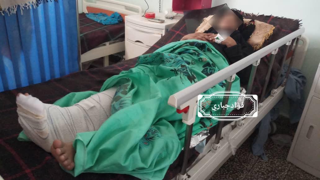 إصابة إمرأة حامل برصاصة قناص حوثي شمال غرب الضالع9