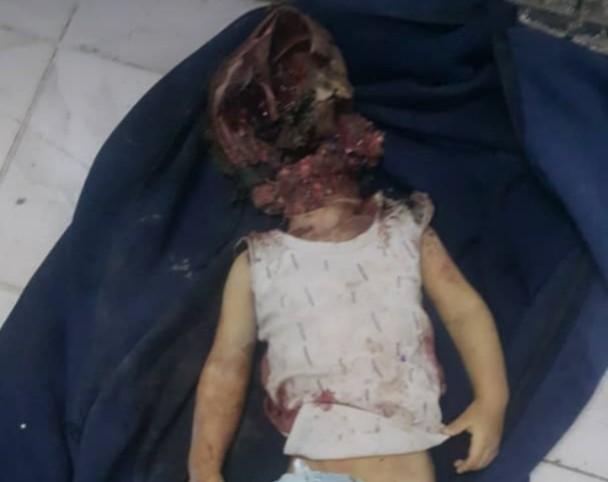 مقتل طفل وإصابة ثلاثة آخرين في قصف مدفعي لمليشيات الحوثي على حي سكني بتعز