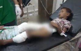 اصابة طفل بقصف عشوائي على الأحياء السكنية بالتحيتا