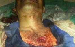 صنعاء : أحد عناصر مليشيات الحوثي يقتل والده