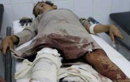 الحديدة : مقتل طفل وإصابة آخر وامرأة بنيران المليشيات