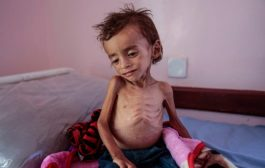 الصحة العالمية: أكثر من 16 مليون يمني بحاجة ماسة للرعاية