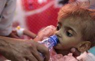 257 وفاة بالدفتيريا في اليمن خلال 26 شهراً