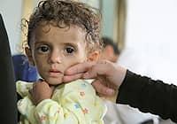 15 ألف طفل يمني يعانون من سوء التغذية الحاد