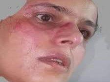 الناشطة ابتسام ابو دنيا تتعرض للاعتداء من قبل مليشيات الحوثي
