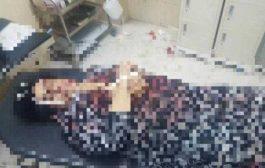 مقتل امرأة على يد أحد اقربائها بأحد فنادق مديرية المنصورة بعدن