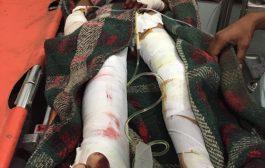إصابة طفل بشظايا قذيفة أطلقها الحوثيون على منازل المواطنين في حجر