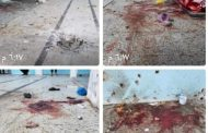 محافظ تعز وقائد المحور يزوران سجن النساء الذي تعرض للقصف بقذائف المليشيات