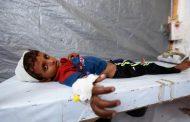 محافظة يمنية من أكبر المحافظات تسجل إصابة بالكوليرا خلال 2020