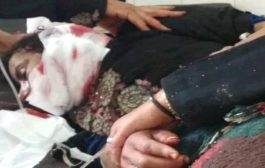 قناص حوثي يستهدف امرأة خمسينية في ريف تعز