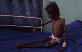 """""""الغذاء العالمي"""" يحدد سبعة عوامل قد تعرض اليمن للانزلاق إلى خطر المجاعة"""