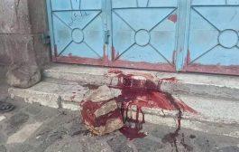 مقتل واصابة اربعة مدنيين بقذيفة حوثية على حي سكني بتعز