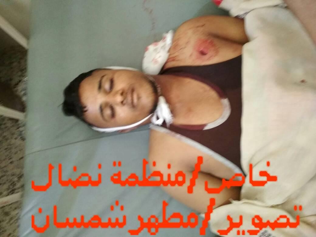 مقتل المنشد اليمني هارون التميمي في مديرية المعافر
