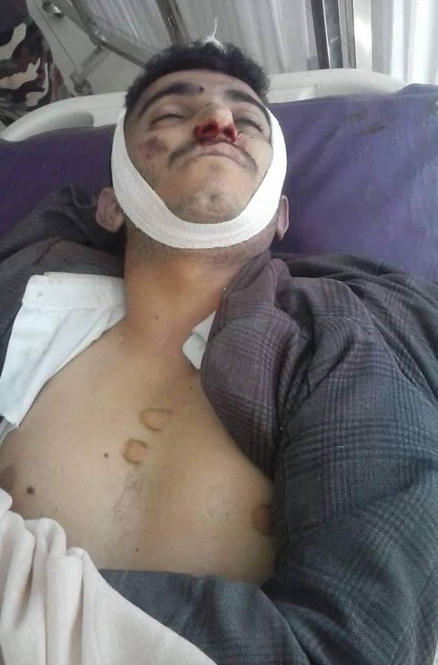 مقتل مواطن على يد نقطة حوثية بالعاصمةصنعاء.