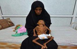 منظمة أممية: أطفال #اليـمن الضحايا الأكثر في أسوأ أزمة إنسانية بالعالم