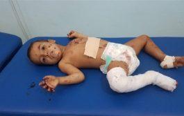 للعام الثالث على التوالي الأمم المتحدة تدرج التحالف العربي على اللائحة السوداء لانتهاكه حقوق الأطفال باليمن