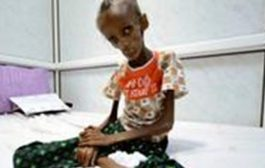 منظمة اللاجئين الأممية تحذر من سوء التغذية في اليمن