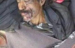 فقد قدمه في سبيل الوطن: جريح يعاني من إهمال سلطات الشرعية بتعز