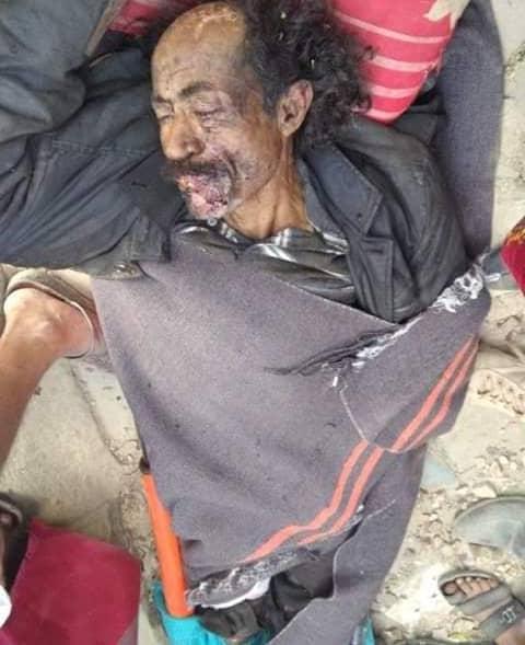 انفجار لغم يبتر قدم أحد أفراد المقاومة بجبهة الشقب