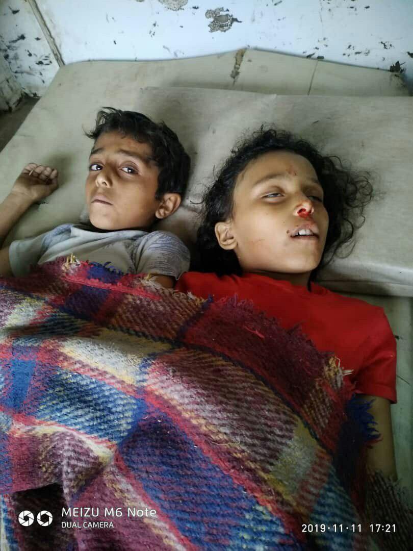 مقتل واصابة 4 أطفال بقصف حوثي بالصلو جنوب تعز