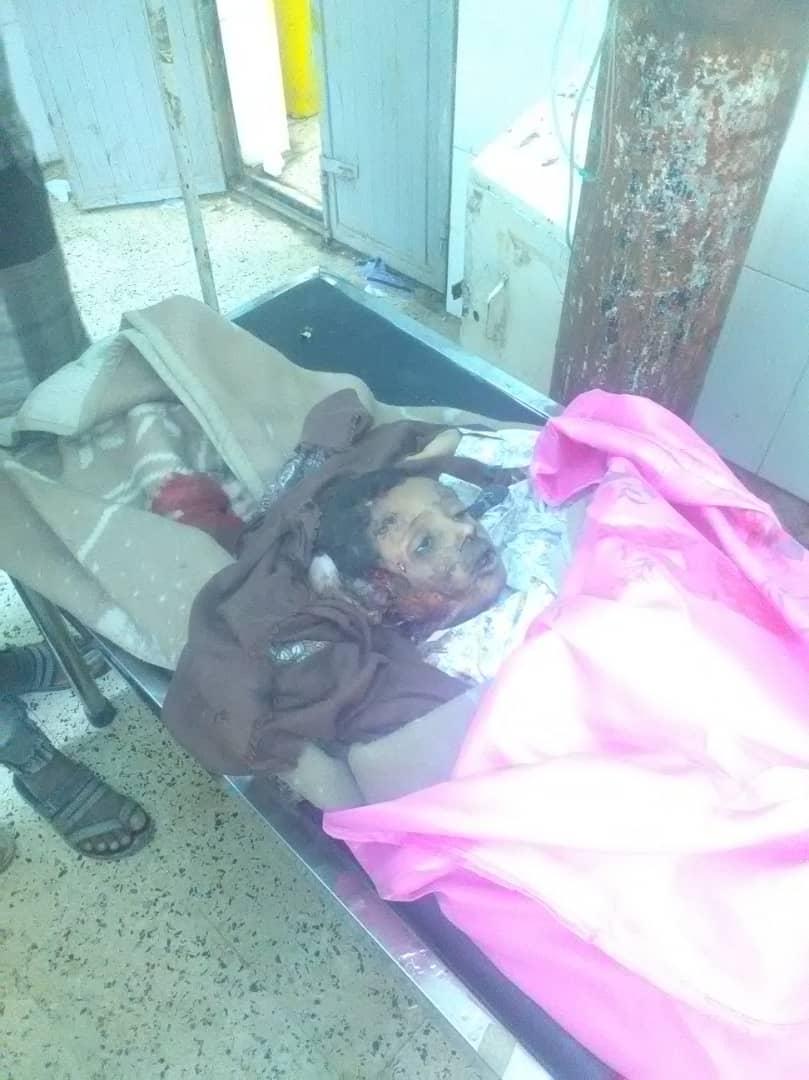 حادث مروري يودي بحياة طفل في محافظة لحج