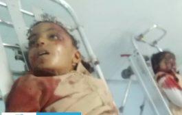 مصرع طفلتين بعملية دهس من قبل طقم امني في الخوخة
