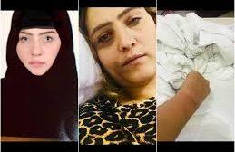 ناشطة يمنية تكشف عن طرق التعذيب الوحشية التي تعرضت لها وغيرها من النساء المعتقلات في سجون الحوثيين