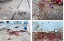 دائرة المرأة بمنظمة إشتراكي تعز تدين قصف الحوثيين سجن النساء