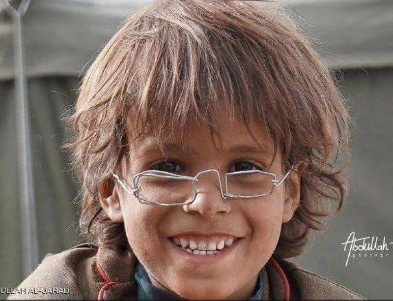 «نظارة» طفل يمني نازح تحصد 2.5 مليون ريال